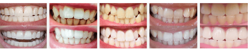 Smile Brilliant Teeth Whitening System Giveaway Before and After Photos