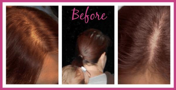Before Viviscal - Thin Hair